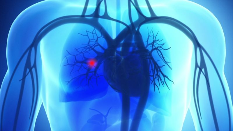 علائملخته شدن خون در ریه