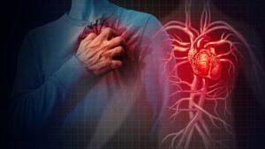 درمان گرفتگی رگ قلب با بالن قلب