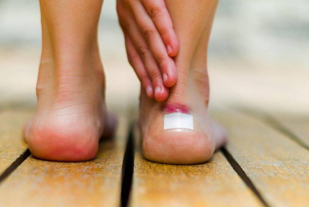 علائم اولیه زخم پای دیابتی