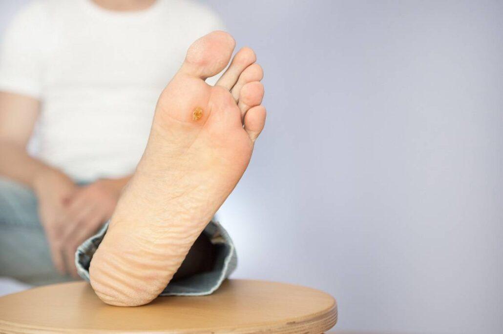 زخم پای دیابتی علائم